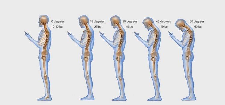 Coloana vertebrala cervicala